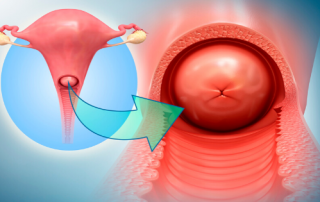 Cervical Health - Frontal and Inferior View of the cervix