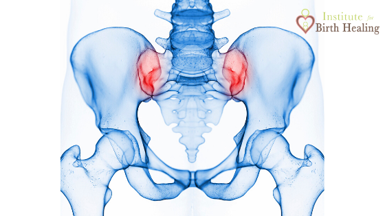 Pelvis with red sacroiliac joints to show area of pain.